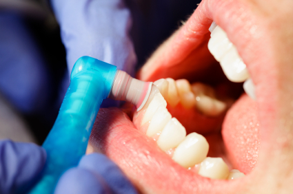 Dental Cleanings at Fusion Dental Specialists in Clackamas, OR